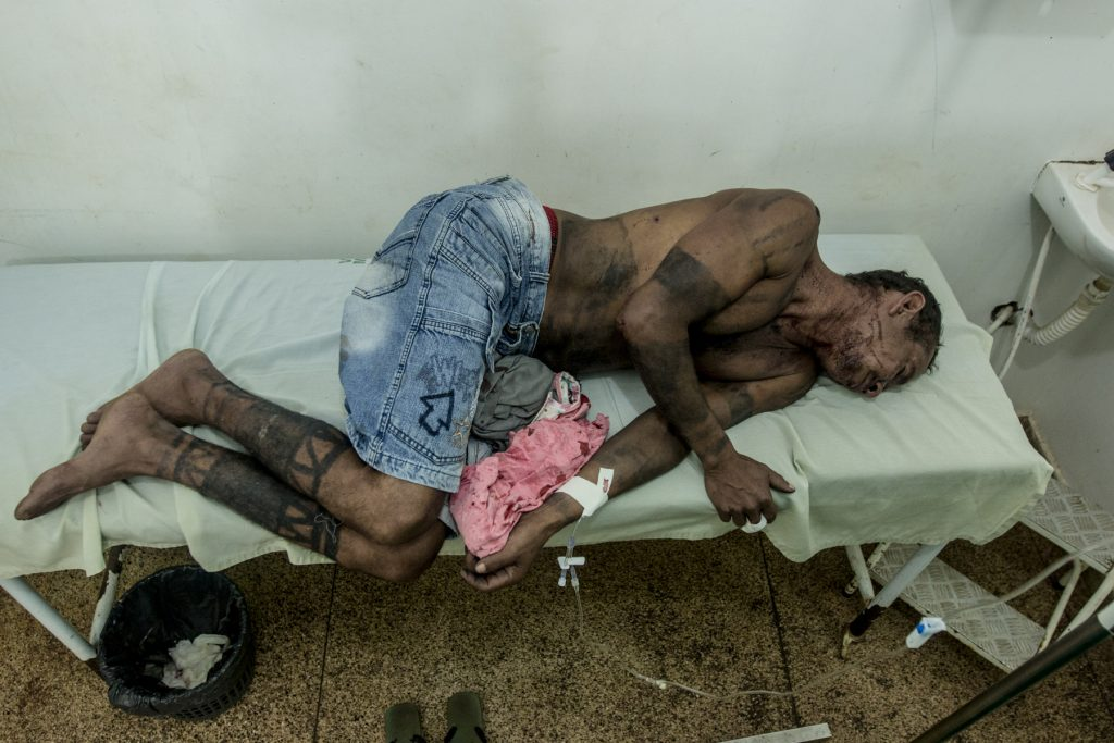 Índio Gamela, Francisco Jansen Mendonça da Luz, ferido em ataque de pistoleiros no Maranhão (Foto: Ana Mendes/CIMI)