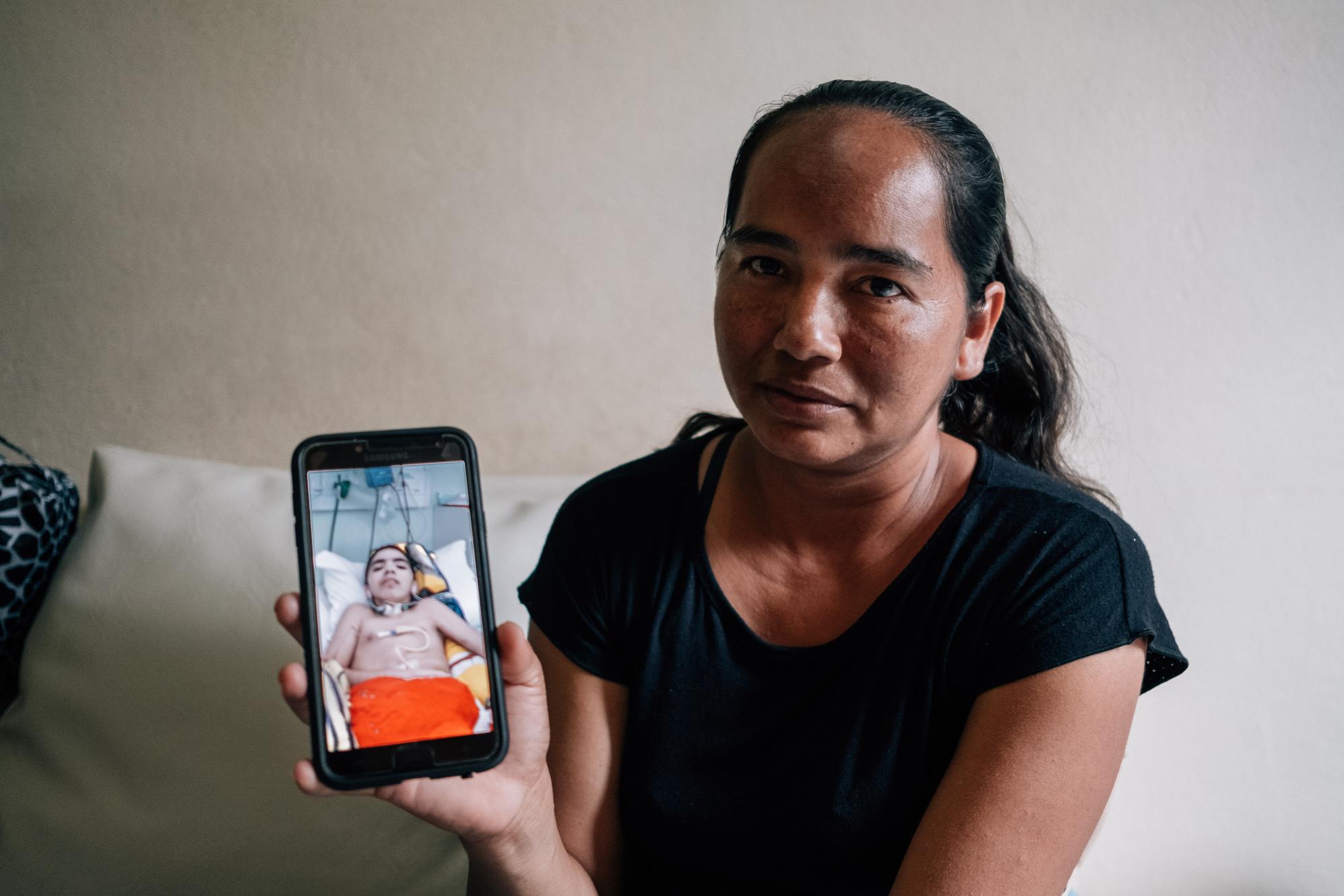 Único sobrevivente de raiva humana no Amazonas é transferido para enfermaria